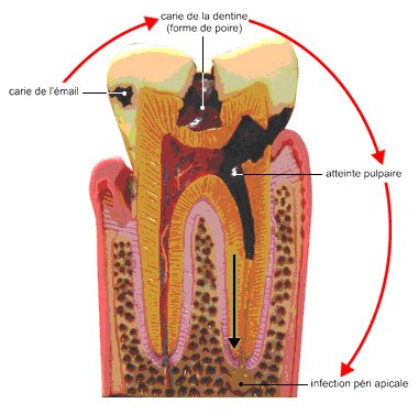 dent dévitalisée douleur pression